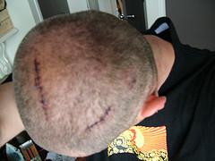 head scar